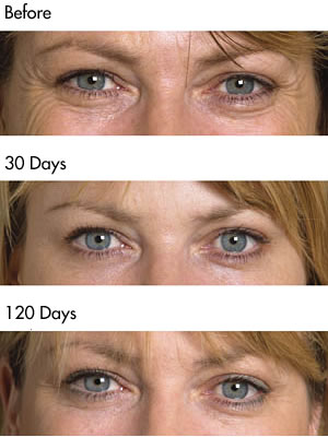 Botulinum Toxin crows feet before and after photos