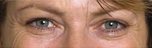 Crows feet before Botulinum Toxin treatment