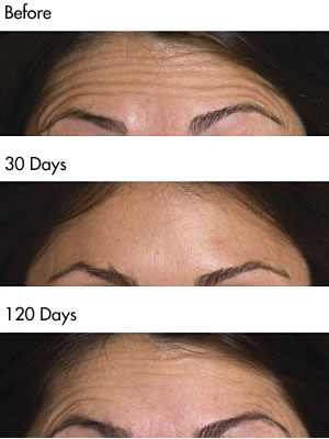 Botulinum Toxin forehead lines before and after photos