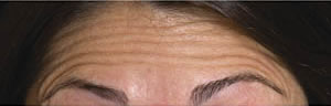 Forehead lines before Botulinum Toxin treatment
