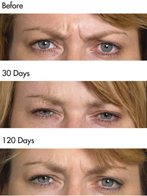 Botulinum Toxin frown lines  before and after photos