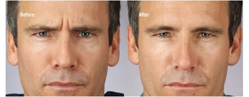 Botulinum Toxin for Men Before and After Treatment