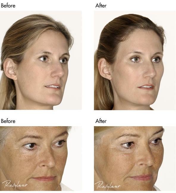 Facial Fillers Before and After - Cheek Filler