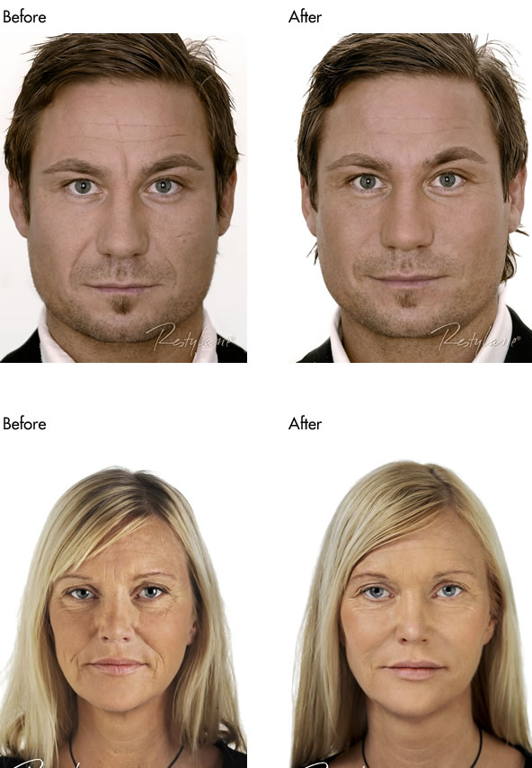 Facial Fillers Before and After - Full Face Male and Female
