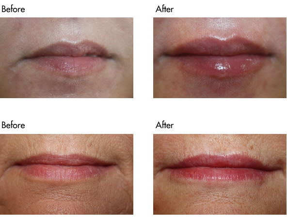 Facial Fillers Before and After - Lip Filler