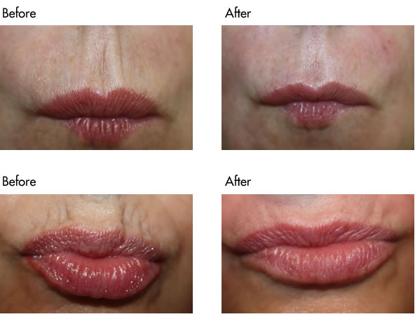 Facial Fillers Before and After - Lip Lines