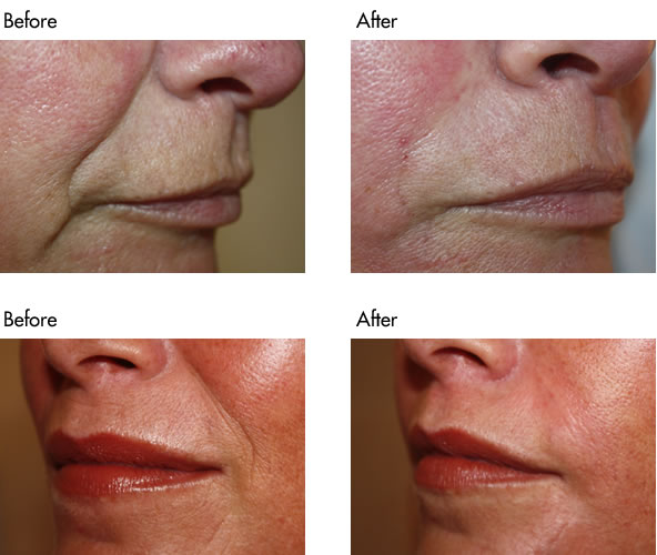 Facial Fillers Before and After - Nasolabial Lines