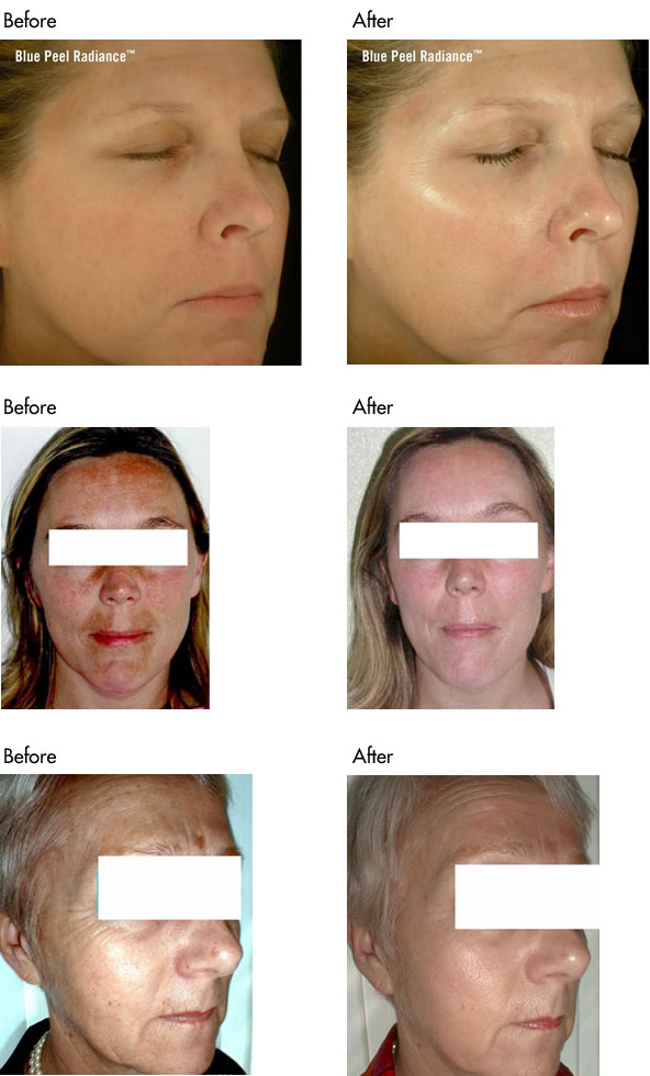 Facial Peels Before and After